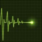 Остановка сердцебиения