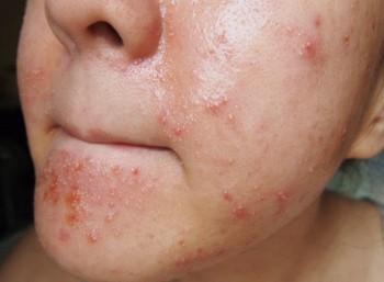 Аллергия на йод – прямое противопоказание к приему ореховой настойки