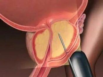 Биопсия простаты позволяет определить тип опухоли