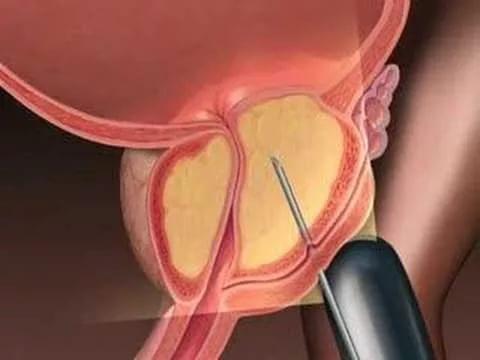 Первые симптомы рака простаты у мужчин