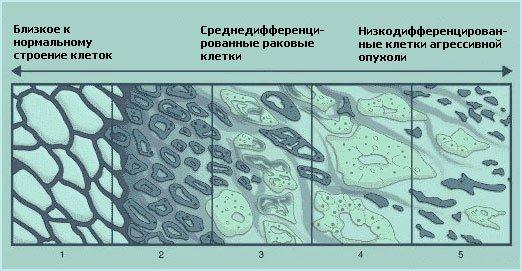 Морфологические особенности различных видов аденокарцином