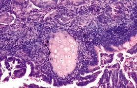 Фрагмент ткани высокодифференцированной аденокарциномы желудка под микроскопом