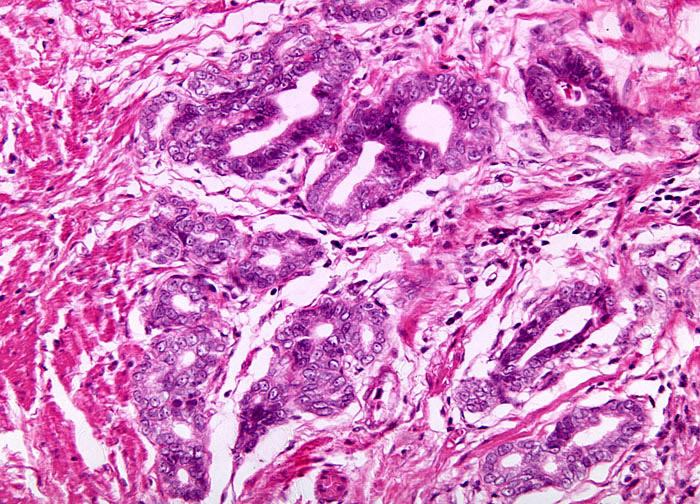 Разновидности рака груди муцинозная тубулярная железистая папиллярная карцинома цистаденокарцинома