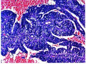 Клетки умеренно дифференцированной аденокарциномы эндометрия под микроскопом