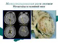 Метастазы рака легкого в головном мозге