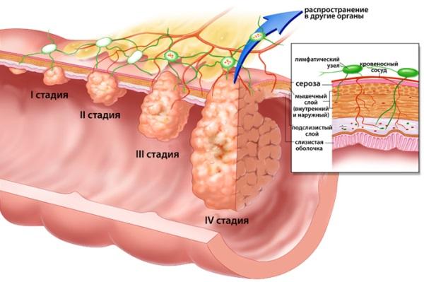 Стадии развития аденокарциномы эндометрия